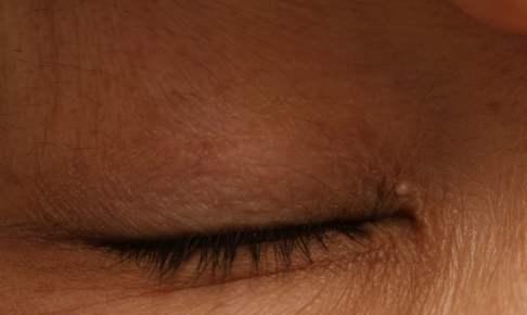 眼瞼下垂術後の稗粒腫の写真