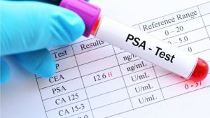 The PSA test is not a reliable test for prostate cancer and can lead to over diagnosis- The Mnadatory Training Group-.jpg