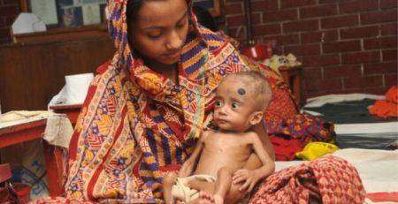 Good gut bacteria 'helps starving children' 1 - The Mandatory Training Group UK -