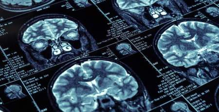 Overweight people more likely to have smaller brains - MTG UK