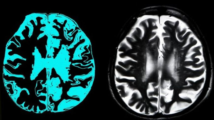 First drug that can slow Alzheimer's dementia - MTG UK