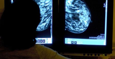 Scientists identify potential risk factors for aggressive form of breast cancer - MTG UK