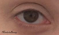 occhio destro