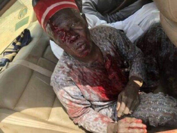 8828908_bado3_jpgf8e480a97e79a2af61d91ac568d3b8a3 Supporters Killed As Thugs Attack Kwankwaso's Convoy In Kano (Photos)