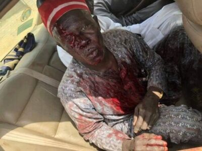8828908 bado3 jpgf8e480a97e79a2af61d91ac568d3b8a3 - Supporters Killed As Thugs Attack Kwankwaso's Convoy In Kano (Photos)