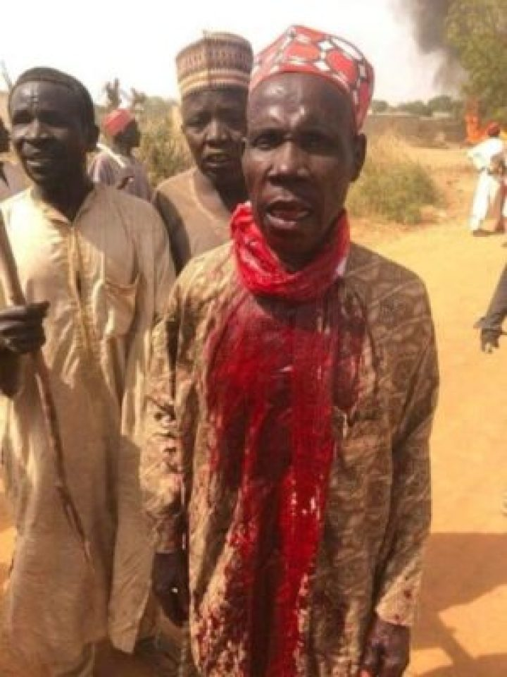 8828910 bado4 jpg96eef145c20ab053ba7e4d3fdc9bc665 - Supporters Killed As Thugs Attack Kwankwaso's Convoy In Kano (Photos)