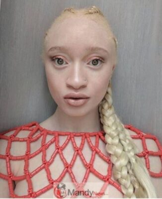 8930758 screenshot20190306113300 jpeg7f1b284d088e6d343407da0921240b8d - Beautiful Albino From Edo State That 'Looks Like Tonto Dikeh' (Photos)