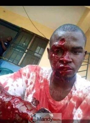 D2V9oEEXQAA03xF - #KanoRerun: More Graphic Photos Of Violence In Kano Re-Run Election