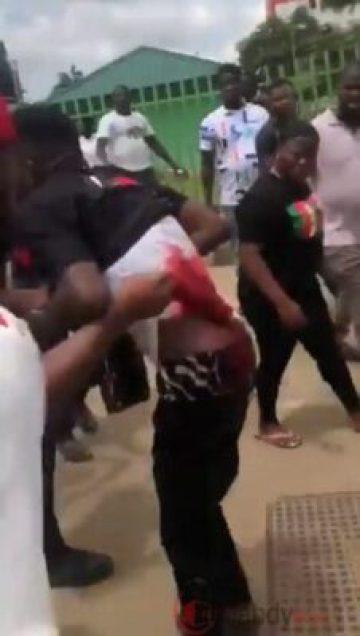 ENDSARS Protester Shot In Benin City (Photos)