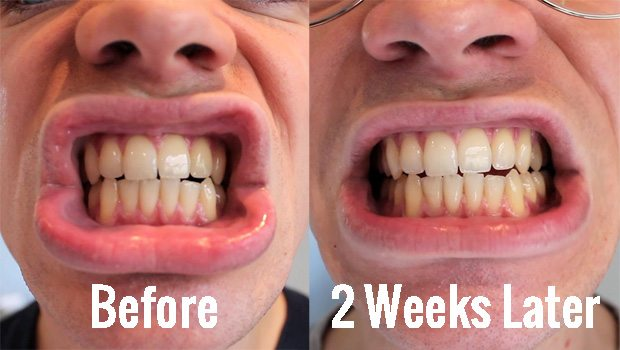 BlanX-White-Shock-LED-Bite-Guard-Teeth-Whitening-Kit