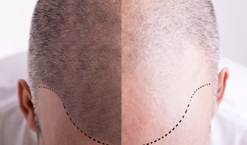 hair-transplant-cost-abroad