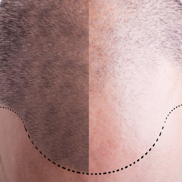 How Much Will A Hair Transplant Abroad Cost You?