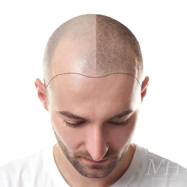 hair-loss-hair-transplant-man-man-for-himself