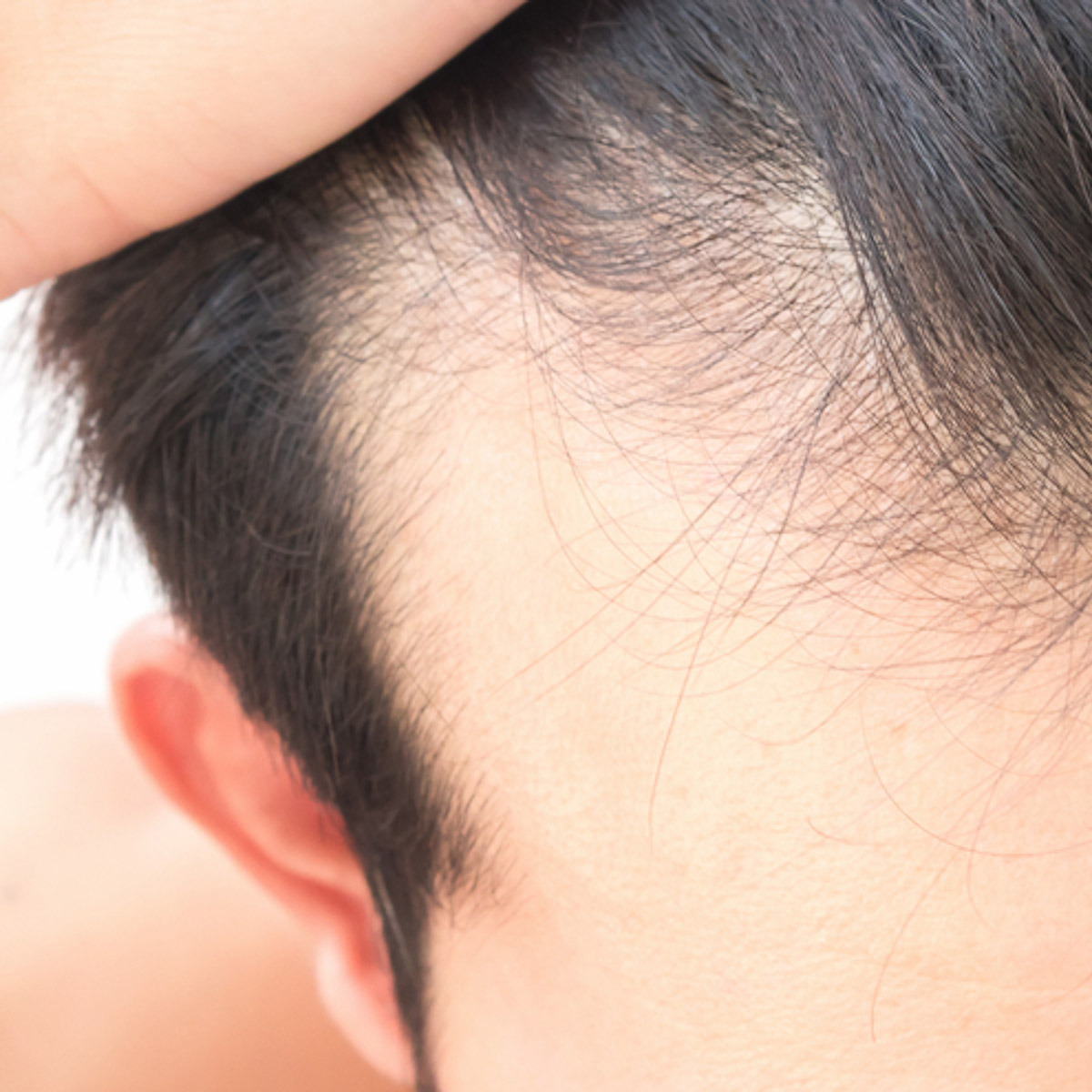man-hair-loss-stop-how-to-man-for-himself-2