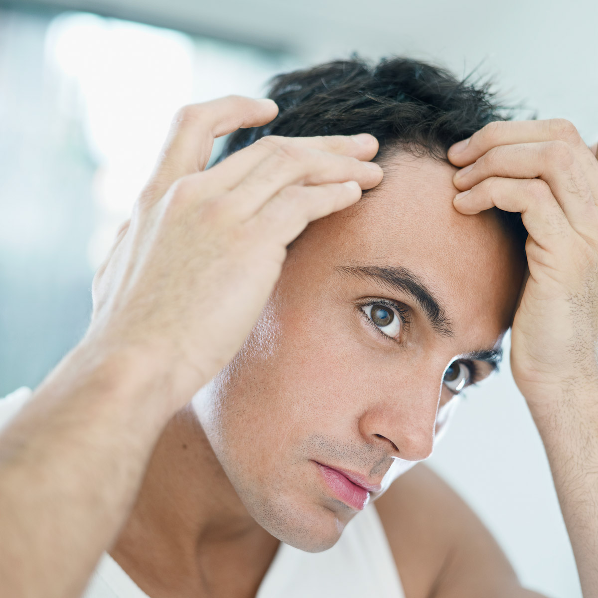 mens-hair-receding-hairline-male-pattern-baldness-man-for-himself