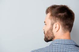 Dandruff causes, cures, prevention
