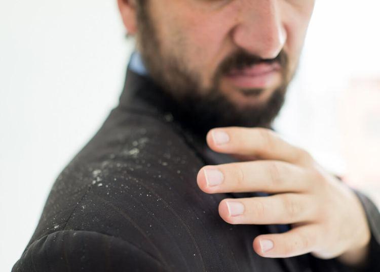 What causes hair dandruff