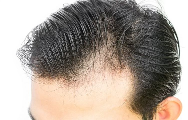 Choosing the best hair loss shampoo for men