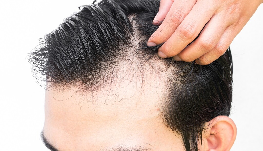 Understanding hair growth to prevent or delay baldness