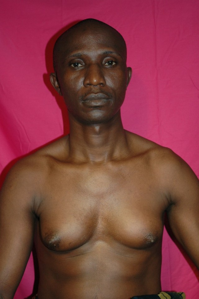 Man Boobs: Everything You Need to Know about Gynecomastia(Enlarged Breasts)  in Men|Causes & Treatment | Nigerian men's Site. Nigerian Men meet here.