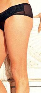 Taylforth leg