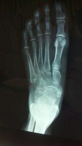 Abrir puerta con radiografia