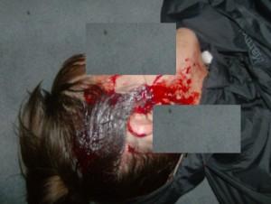 15 Νοέμβρη 2010: Ανδρες της ΔΕΛΤΑ και της ΔΙΑΣ επιτίθενται σε πορεία, χτυπώντας με δολοφονικές διαθέσεις 27χρονη Αμερικανίδα υπήκοο. Η ίδια υποβάλλει μήνυση τον Ιανουάριο για απόπειρα ανθρωποκτονίας. Τη μήνυση συνοδεύει κείμενο κατά της αστυνομικής καταστολής στην Ελλάδα, ειδικά για την ομάδας ΔΕΛΤΑ, που συνυπογράφουν 151 προσωπικότητες. Μεταξύ τους οι Νόαμ Τσόμσκι, Τζούντιθ Μπάτλερ, Εμάνουελ Βαλερστάιν
