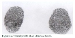 Thumbprints of identical twins