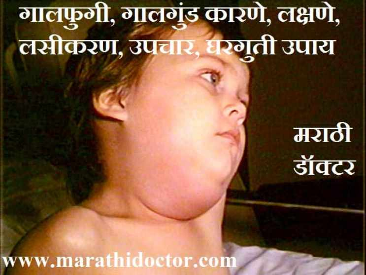 mumps in marathi, mumps meaning in marathi, galgund, गालगुंड घरगुती उपाय , galgund gharguti upay, गालफुगी का होते, गालगुंड कारणे, गालगुंड लक्षणे, गालगुंड प्रतिबंध, गालगुंड लसीकरण, गालगुंड उपचार, गालगुंड घरगुती उपाय, Galgund, galphugi, गालफुगी, गालगुंड, galgund in marathi, galgund treatment in marathi, galfugi var medicine, belladonna plaster for mumps, mumps treatment in marathi, parotitis in marathi, what is mumps called in marathi, mumps marathi mahiti, mumps disease meaning in marathi, mumps virus in marathi, mumps vaccine in marathi, mumps information in marathi