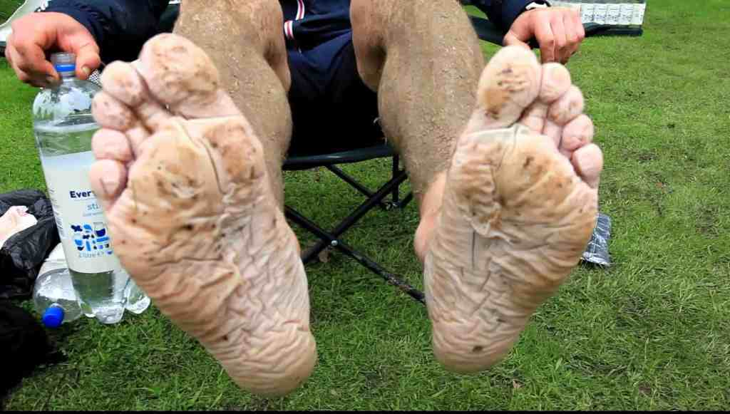 Distance Running Foot Care 5