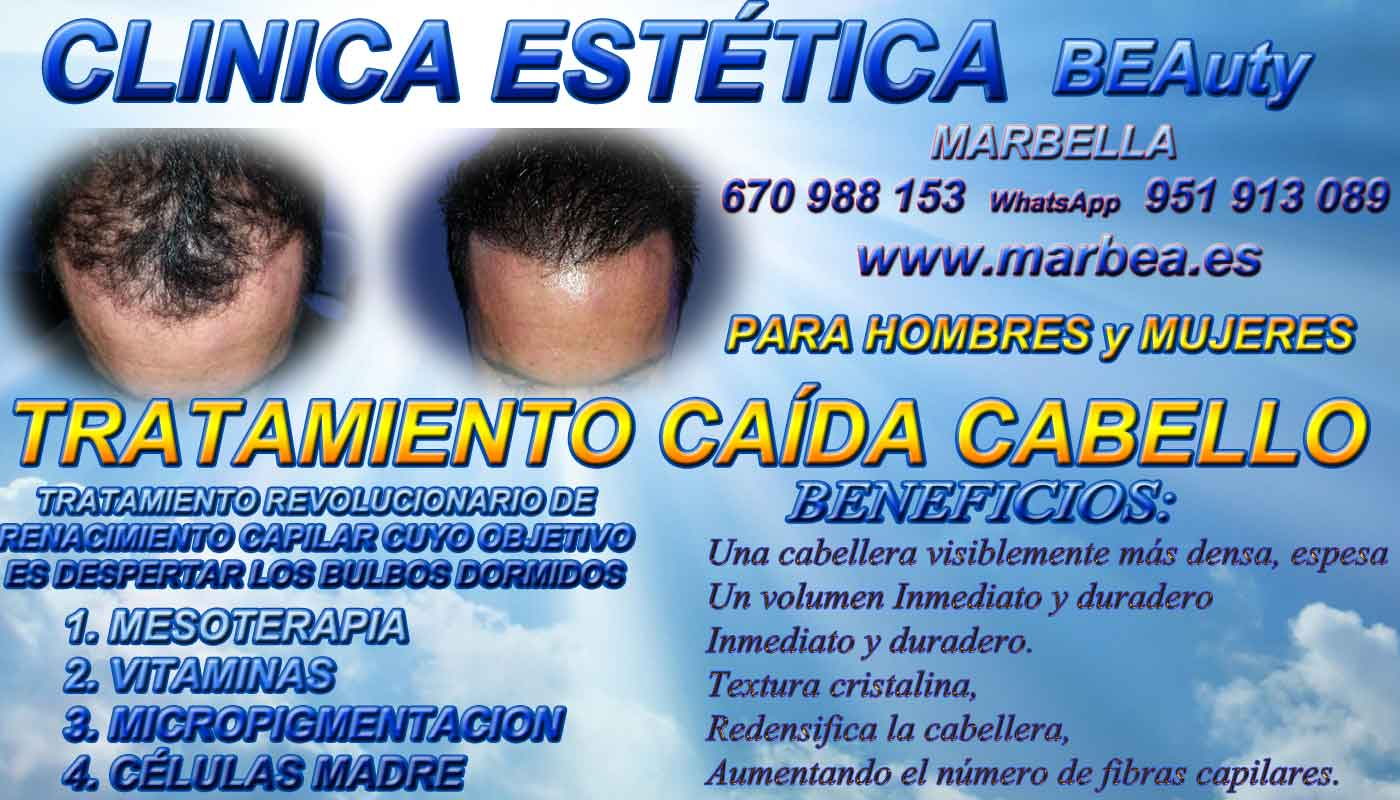 Trasplante capilar Clínica Estética y Injertos Cabello Marbella y en Málaga