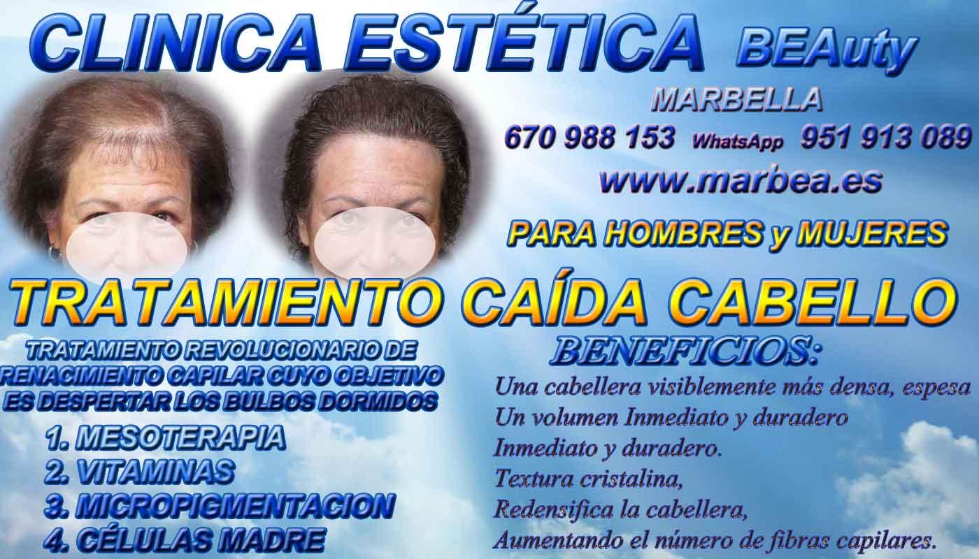 Injertos capilar Clínica Estética y Implante Cabello En Marbella y Coin