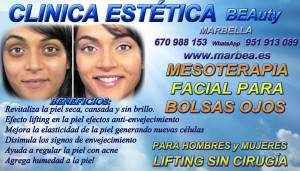 ARRUGAS MARBELLA con MESOTERAPIA PARA eliminar o borrar BOLSAS  de OJOS