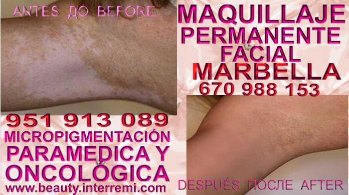 Tratamiento Para La Vitiligo en la clínica estetica ofrenda Vitiligo Causas O Tratamiento Manchas De Vitiligo Vitiligo Tratamiento Vitiligo