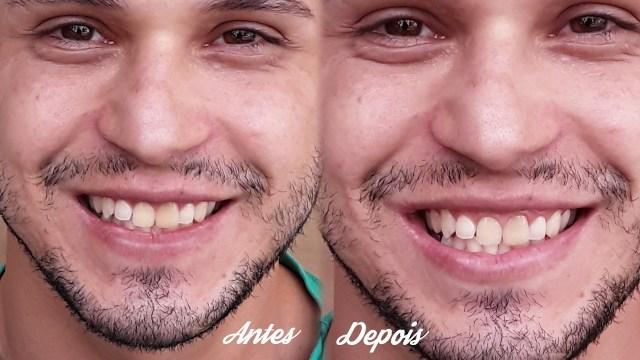 Dentes mais brancos com bicarbonato de sódio