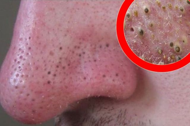 cravos na pele e nariz