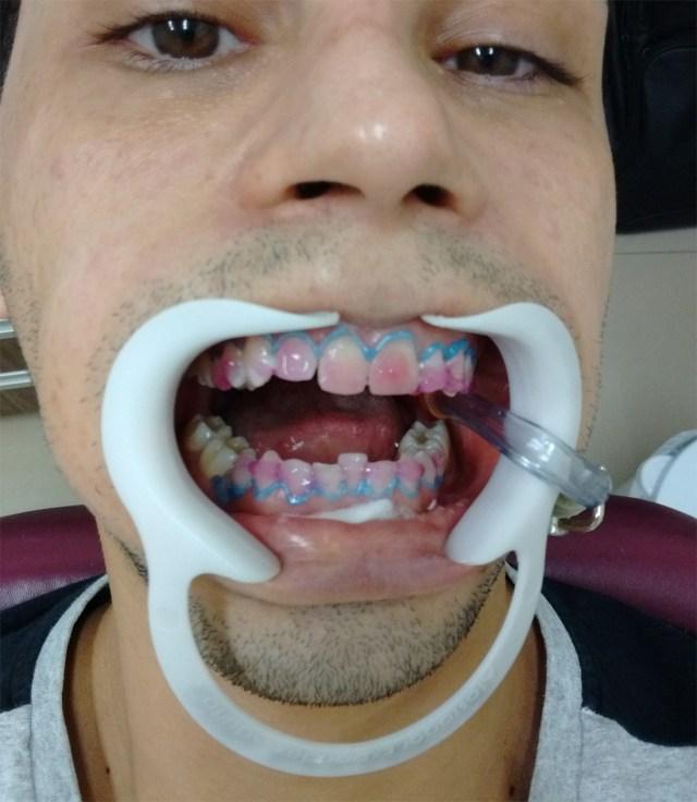 Durante o clareamento dos dentes com laser