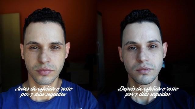 Resultado de esfoliar o rosto por dias