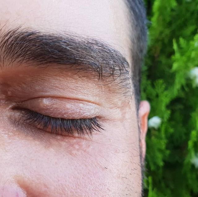 Siringoma como tratar