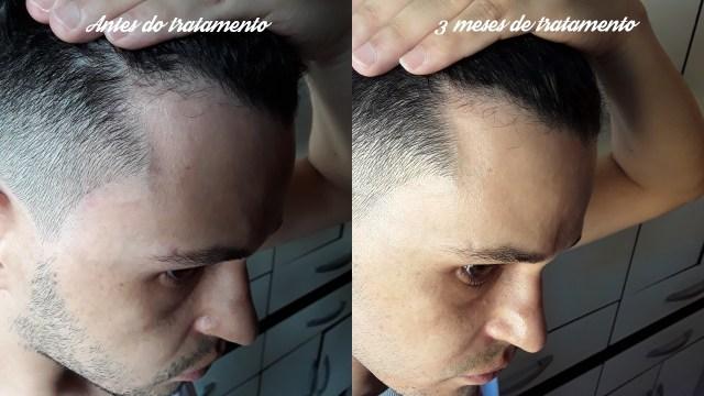 Como combater a alopecia androgenética
