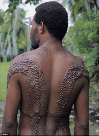 Chambri raised scars krokodil