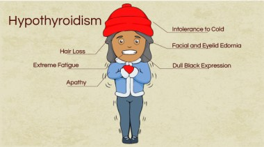 Signs and Symptoms of Hypothryoidism