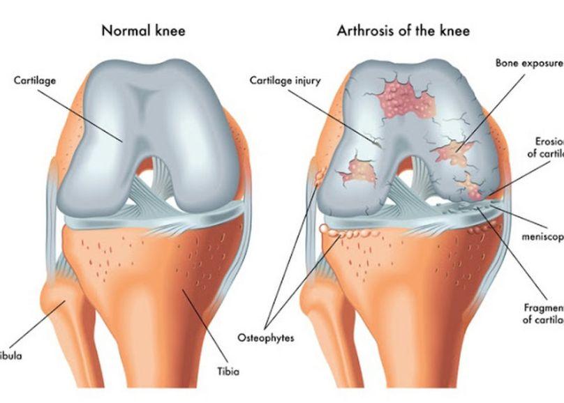Resultado de imagen para cartilago de rodilla