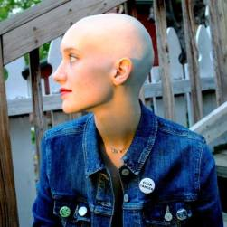 Full-on chemo babe. Photo courtesy of Alannah Giannino.