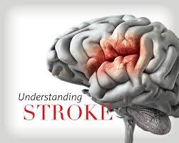 Serangan Stroke Karena Keturunan?