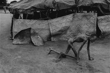 Sudan, 1993 - Famine victim in a feeding center.