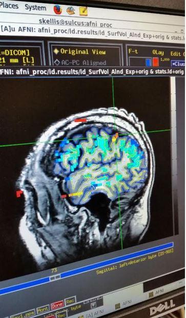 fMRI scan