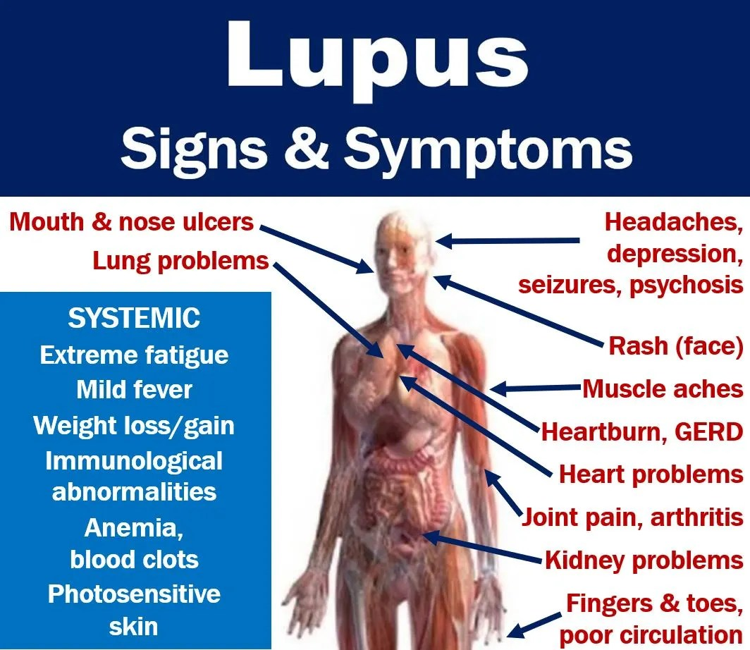 Lupus signs and symptoms - list