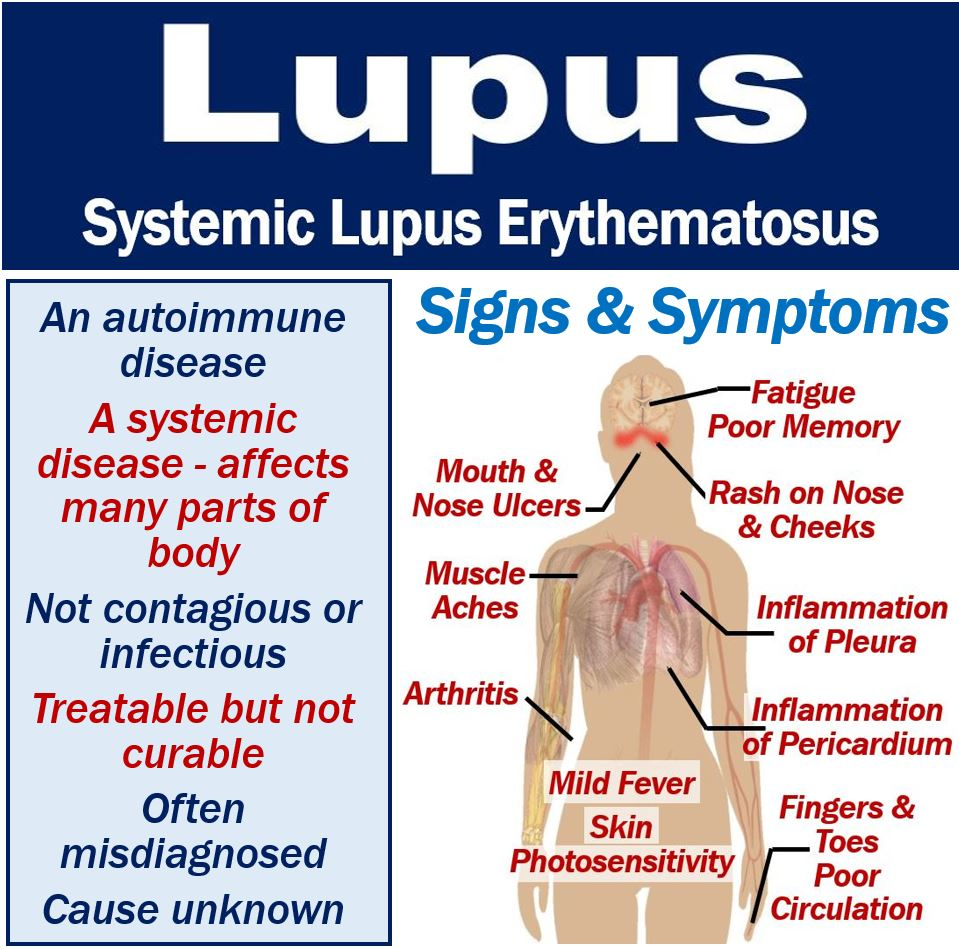 What is lupus? Symptoms, causes, diagnosis, and treatment