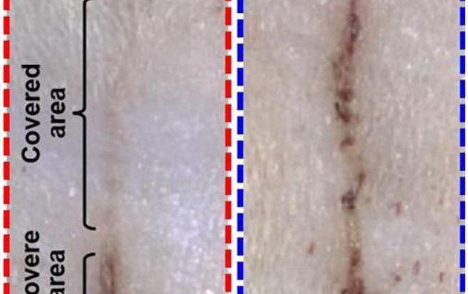 E-bandage image